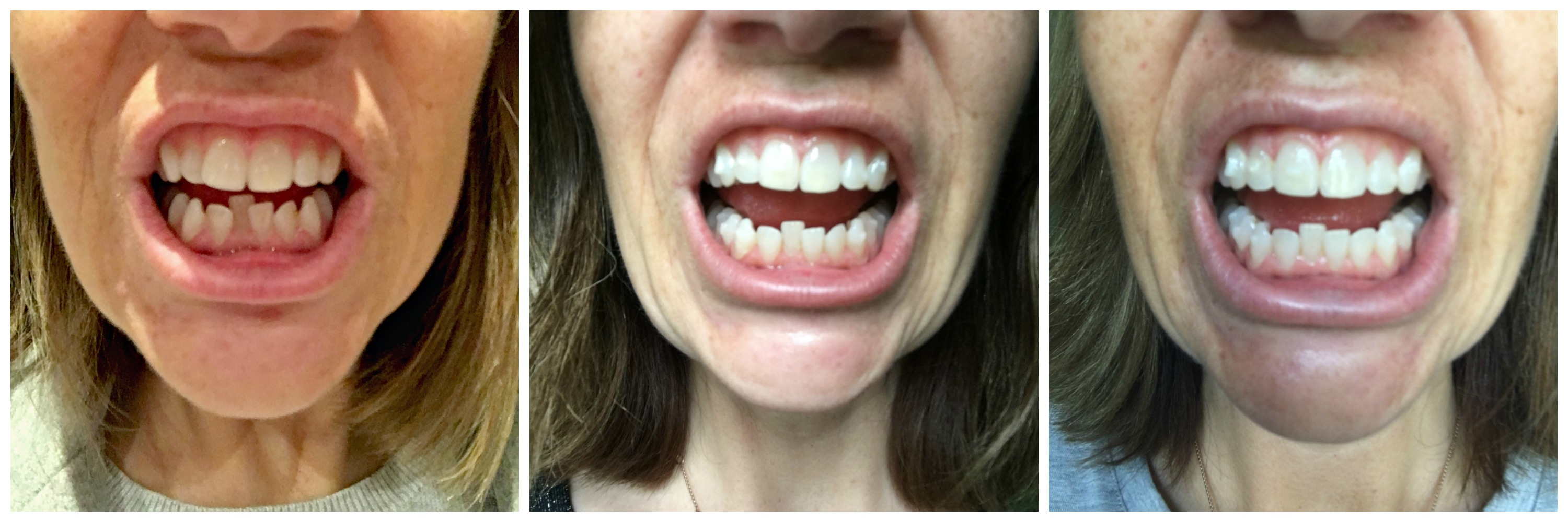 Invisalign Braces - The Low Down - Inside, Outside & Beyond
